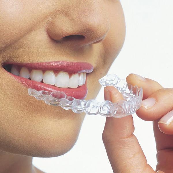 Зъбни aлайнери