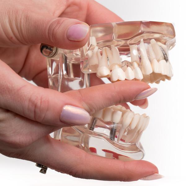 Възстановяване на предни зъби / бондинг