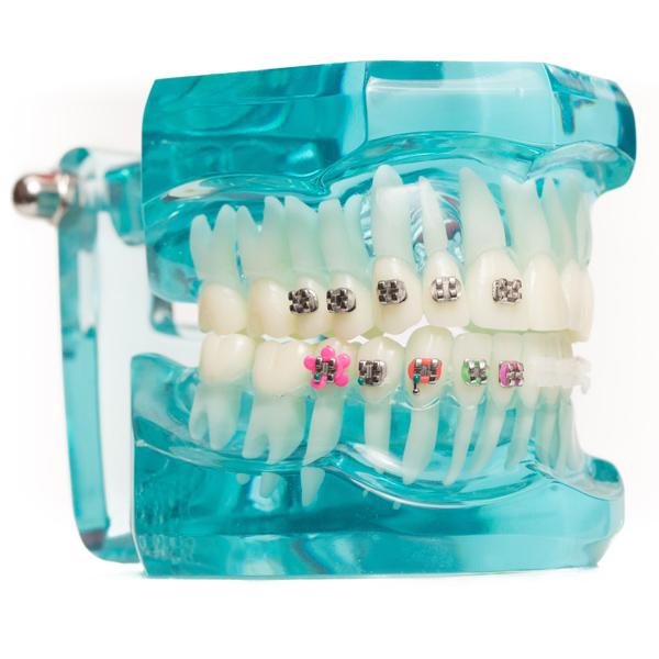 Брекети и Ортодонтско лечение
